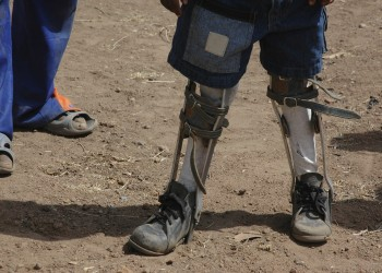 MMU disabled services in Africa