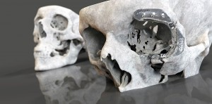 Innovative 3D digital scanning technologies and advanced manufacturing research at Cardiff Metropolitan University is used in maxillofacial reconstructive surgery to treat disease or following trauma.